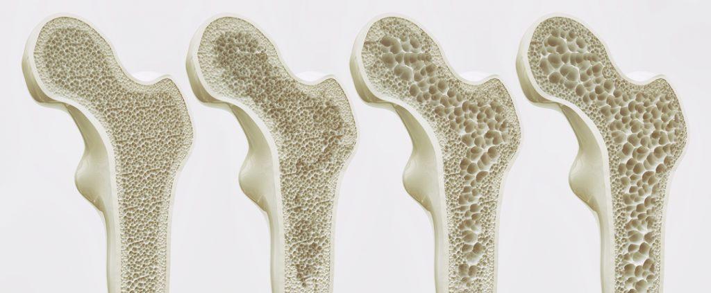 wirbelsäule osteoporose keine kraft